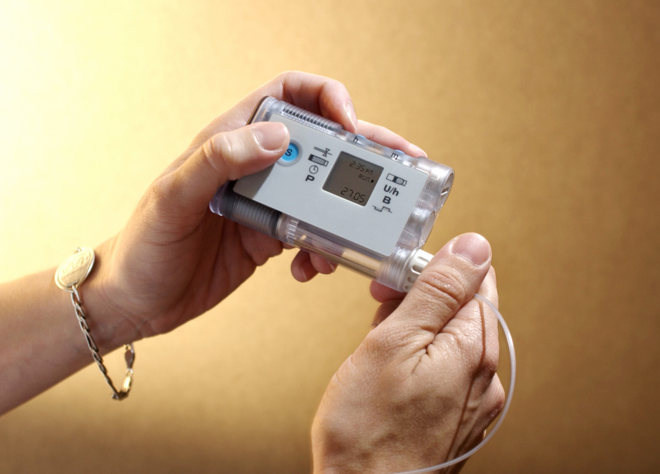 New Study Shows Blood Sugar Levels Affect Risks in Type 1 Diabetes